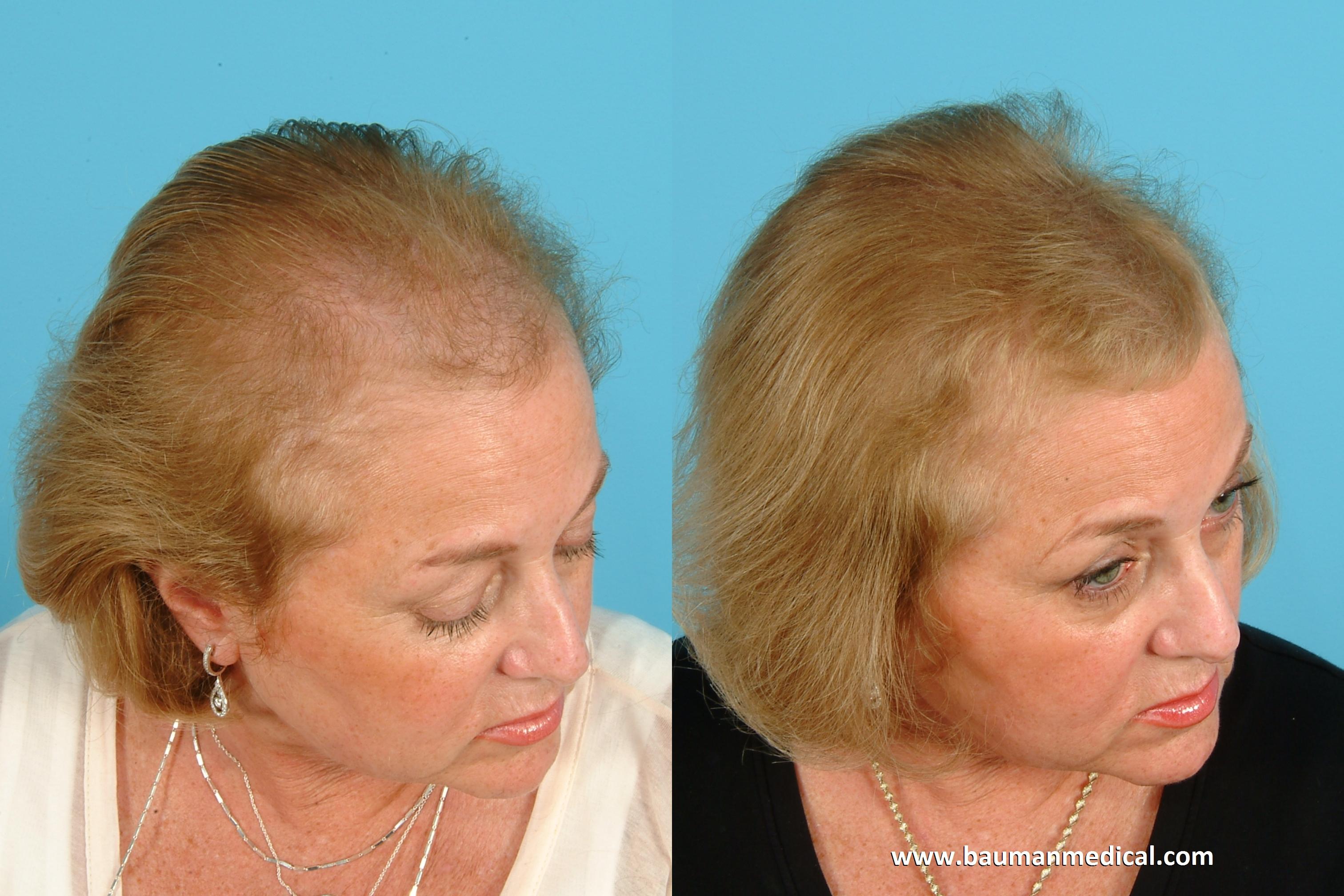 Dutasteride uk hair loss.doc - Lasertherapy_frontal Male_6mos Lasertherapy_frontal Male_6mos