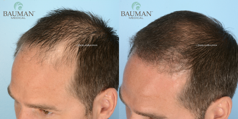 01-before-12mos-after-SmartGraft-FUE-hair-transplant-bauman