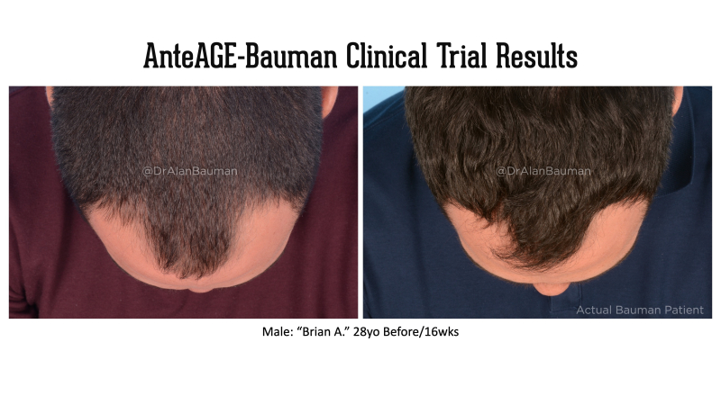 Bauman-AnteAGE Clinical Trial results_28M-top