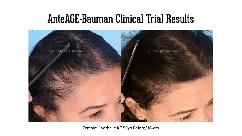 Bauman-AnteAge Clinical trial results_50F temples